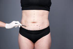 Bild von Konturen für Bauchdeckenstraffung