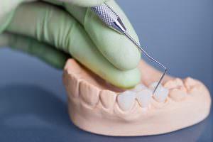 Bild von modelliertem Zahnersatz