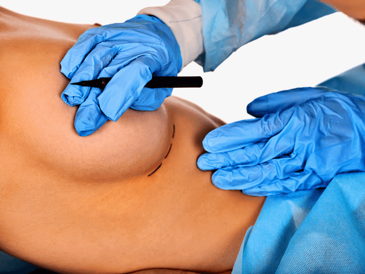 Ein Arzt zeichnet den Schnittverlauf an einer Brust an.
