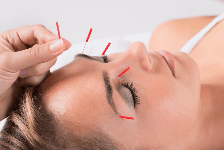 Akupunktur Kosten Anwendung Im überblick