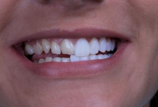 Bild von Veneers im Vergleich zu normalen Zähnen