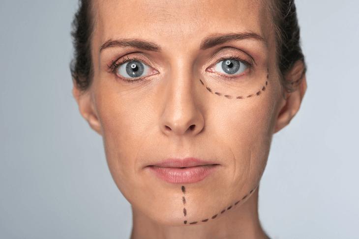 Bild von Frau mit aufgemalten OP -Schnittlinien im Gesicht