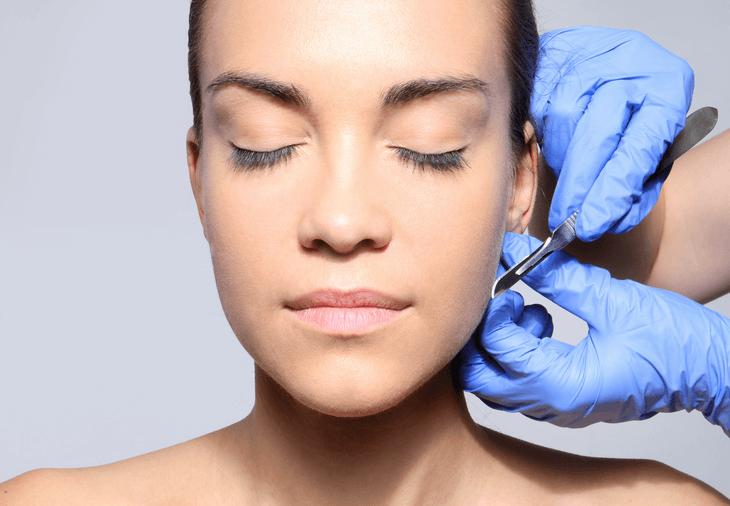 Bild von Frau vor Ohrenkorrektur